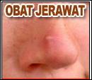Obat Jerawat
