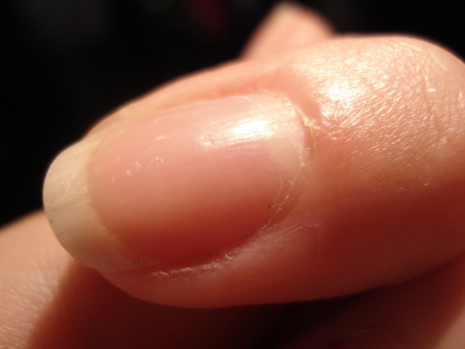 gule neglebånd