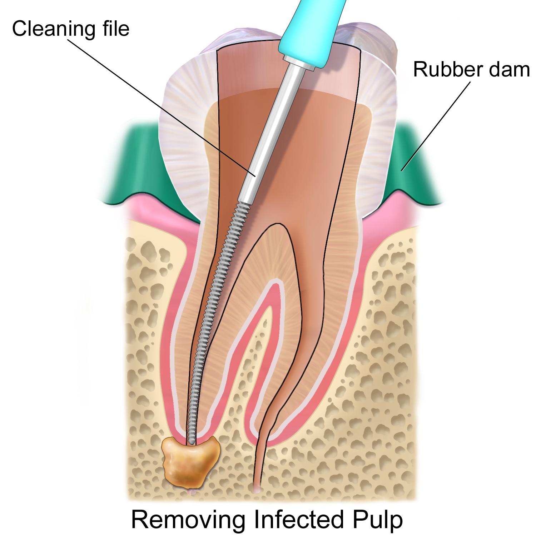 http://www.bestdentistbangalore.com/endodontics/