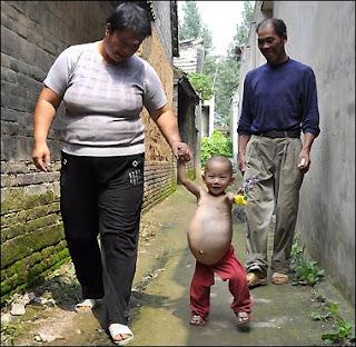 bayi hamil tua