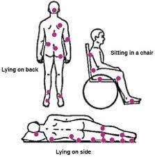 Ulceras de cúbito