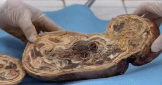 Bebê de pedra nasçe morto