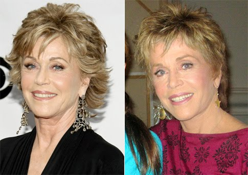 Jane Fonda Before After Plastic Surgery, Eyes, Neck
