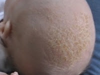severe dandruff treatment