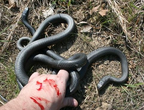 Black Racer Snake Bite