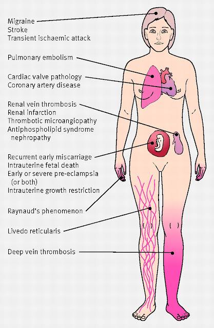 Antiphospholipid syndrome-signs