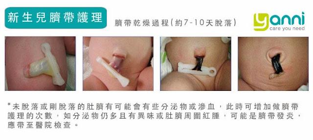 第一,要保持干燥。在寶寶臍帶脫落前應保持干燥,尤其洗澡時不慎將臍帶根部弄濕,應先以干淨小棉棒擦拭干淨,再執行臍帶護理。    第二,要避免摩擦。紙尿褲大小要適當,千萬不要使尿褲的腰際剛好在臍帶根部,這樣在寶寶活動時易摩擦到臍帶根部,導致破皮發紅,甚至出血。    第三,要避免悶熱。絕對不能用面霜、乳液及油類塗抹臍帶根部,以免臍帶不易干燥甚至導致感染。