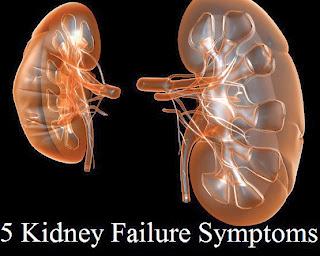 5 Kidney Failure Symptoms