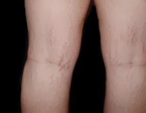 Skin problems on face skin care tips stretch marks on legs stretch marks on legs ccuart Gallery