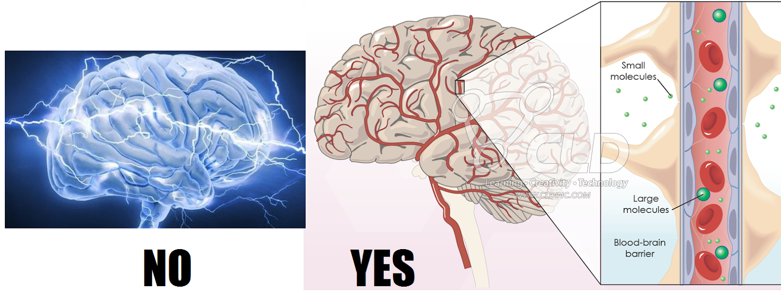 Post-Doc Ergo Propter Hoc: Bursting Bubbles Breach Blood-Brain ...