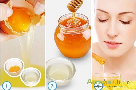 Cách trị mụn đầu trắng từ mật ong giúp thay tế bào chết hiệu quả