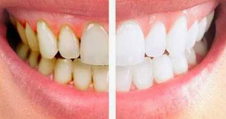 Cara Memutihkan Gigi Kuning Dengan Mudah Dan Cepat