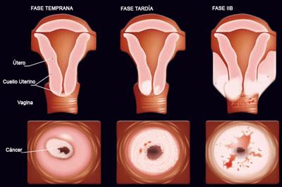 lesiones en el cuello uterino: