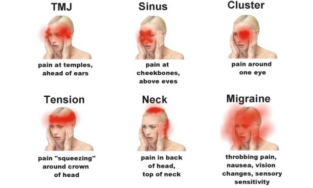 Types-of-Headaches-and-health-warnings