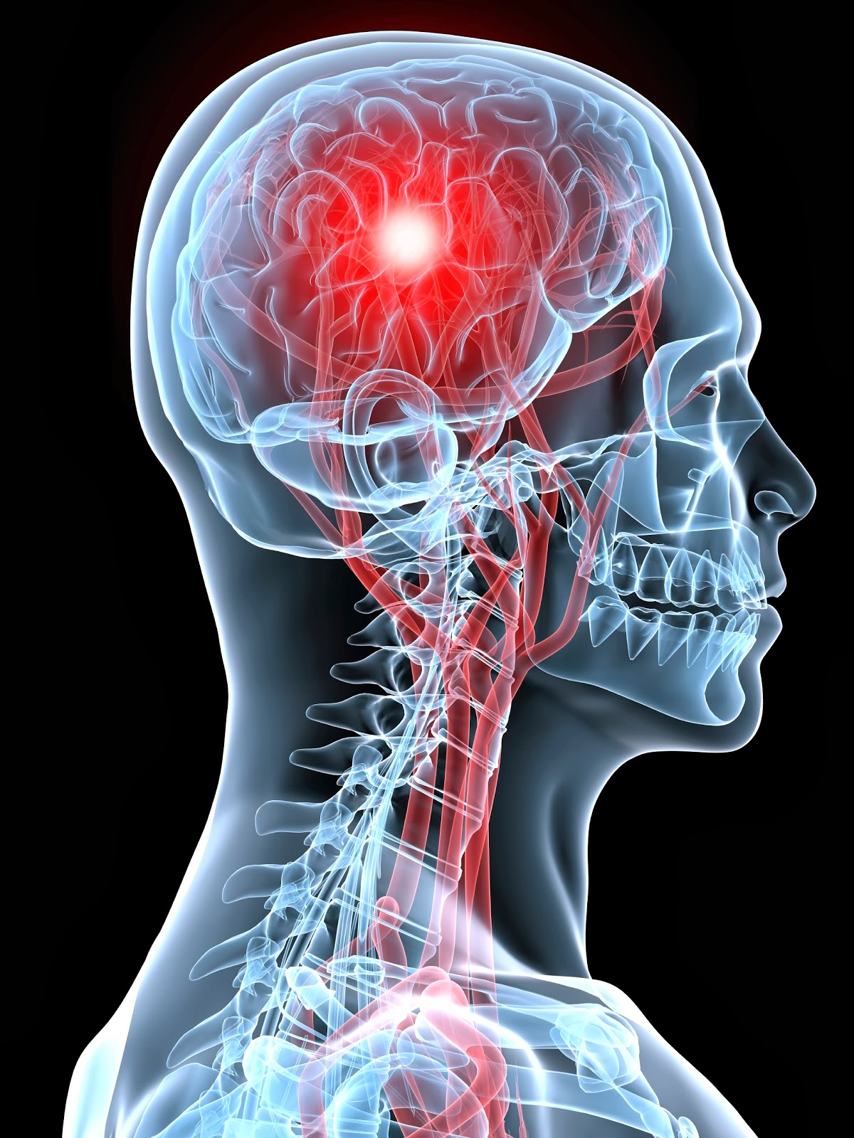 cva cerebrovascular accident The influence of heredity factors in cerebrovascular accidents was investigated  by studying the families of 80 patients with a clinical diagnosis of cva.