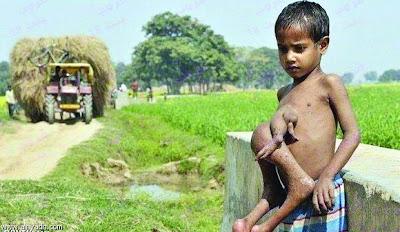 تؤام طفيلي مدفون الرأس والأرجل داخل جسد طفل هندي