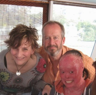 Mui, who has harlequin ichthyosis, with her parents