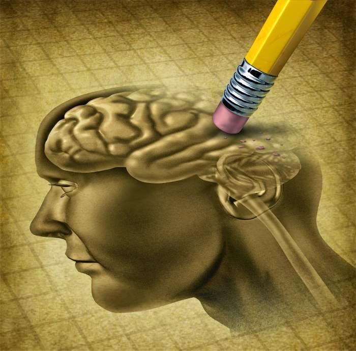 Alzheimer - An - dây - mơ - Bệnh suy giảm trí nhớ