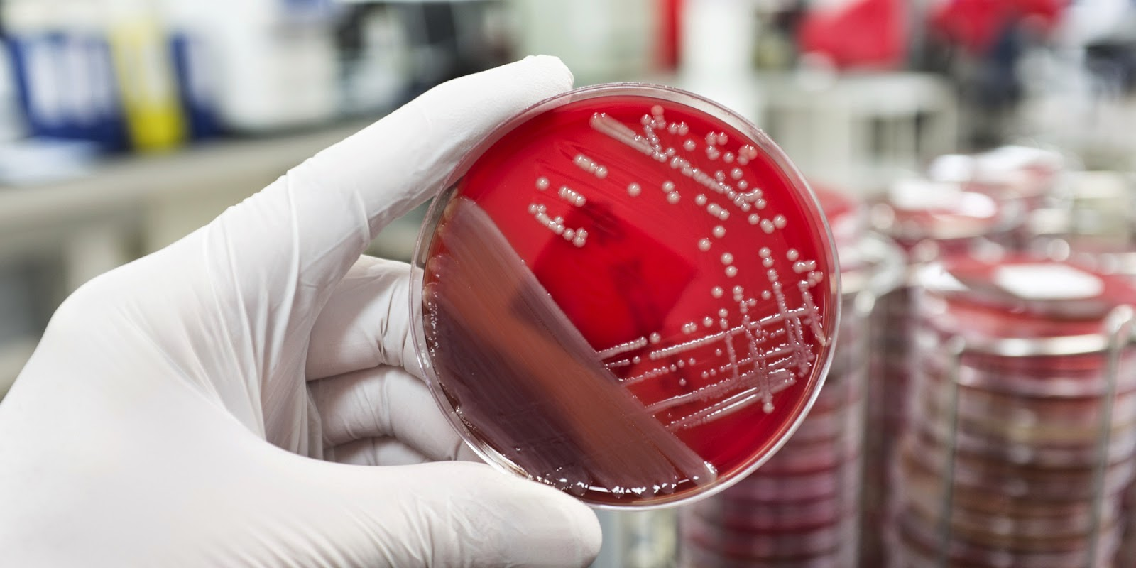 New Protein Detonates Superbugs From Within