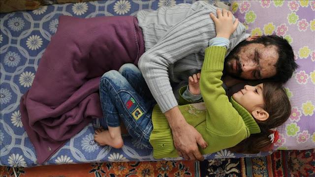 Mengharukan, Bocah Suriah Donorkan Matanya Untuk Sang Ayah
