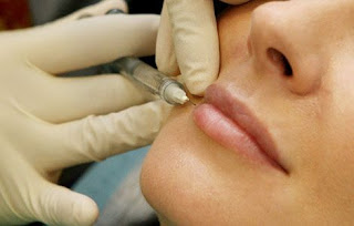 Curiosidades sobre o Botox