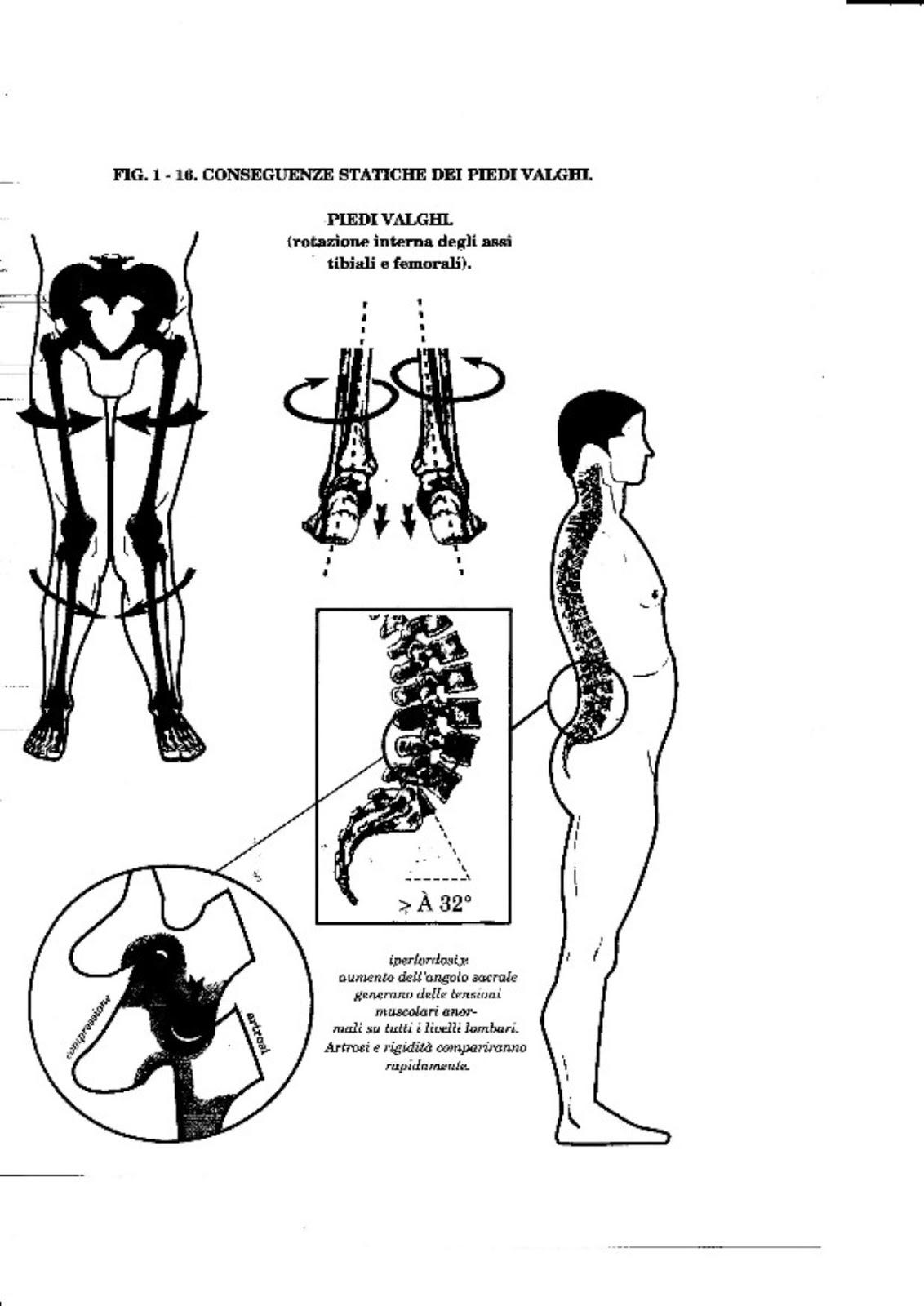 Tipi di chirurgia vascolari di operazioni