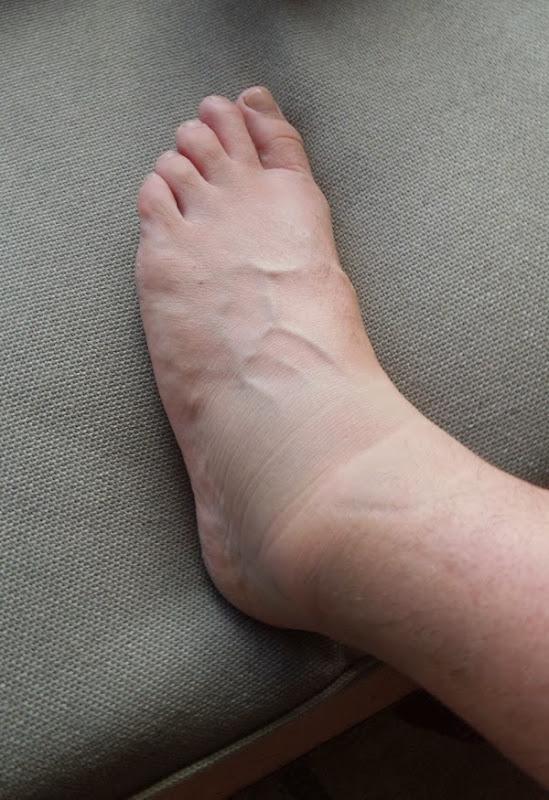 Swollen left ankle