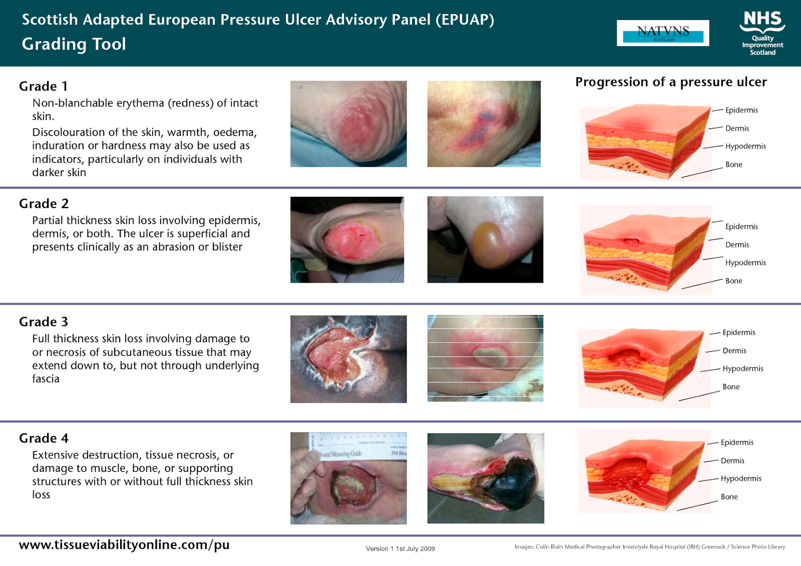 decubitus ulcers essay Decibitus ulcers: the terms decubitus ulcer and pressure sore often are used interchangeably in the medical community decubitis ulcers occur in many positions, such as prolonged sitting (eg.