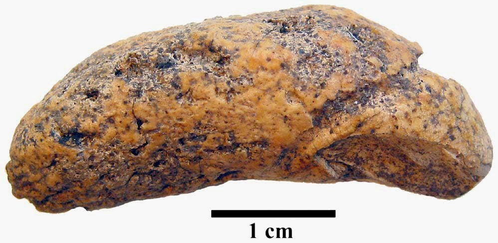 http://sciencythoughts.blogspot.co.uk/2014/10/a-preserved-bladder-stone-from-medieval.html