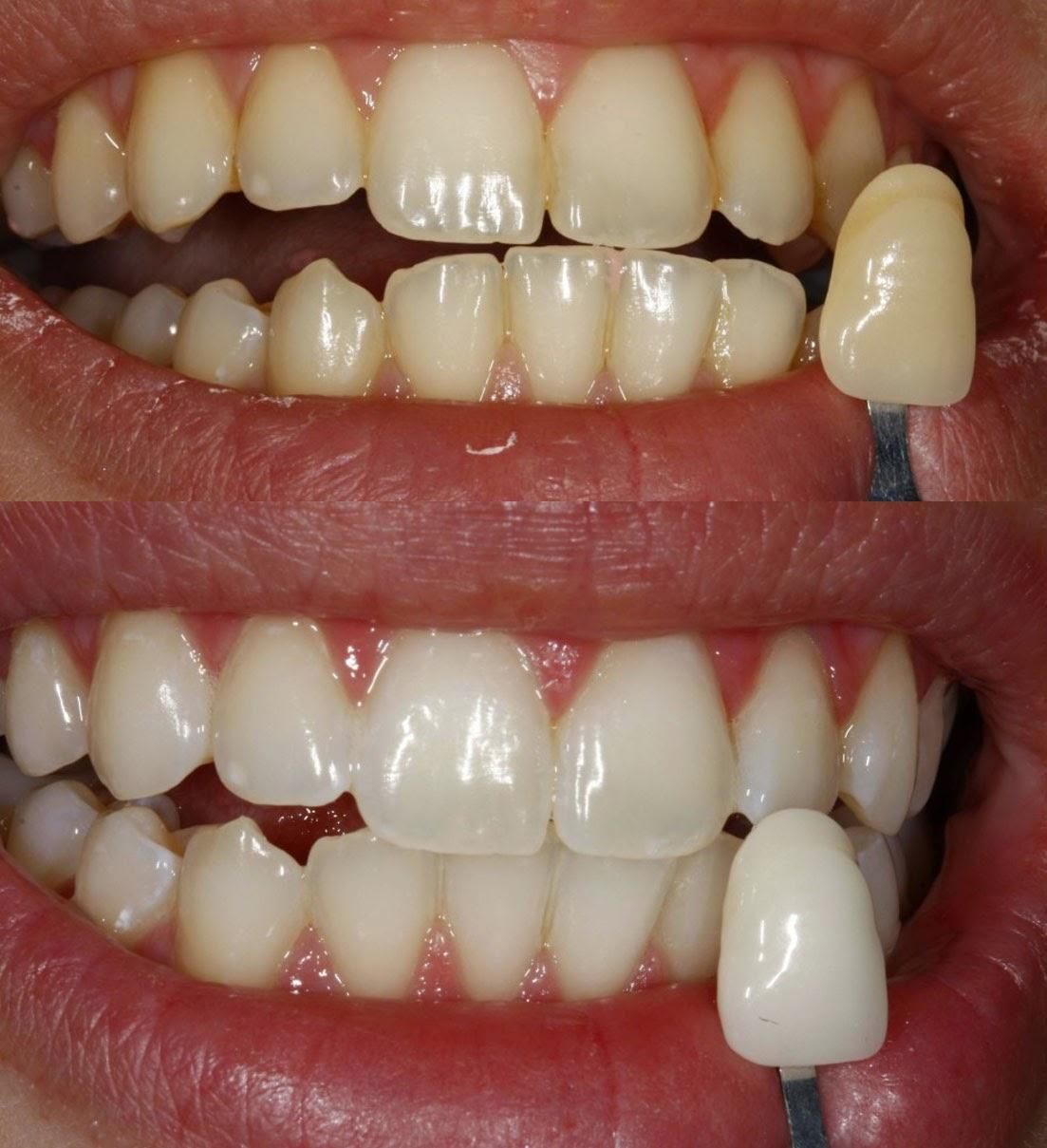 Clareamento Dental Pergunte A Um Dentista