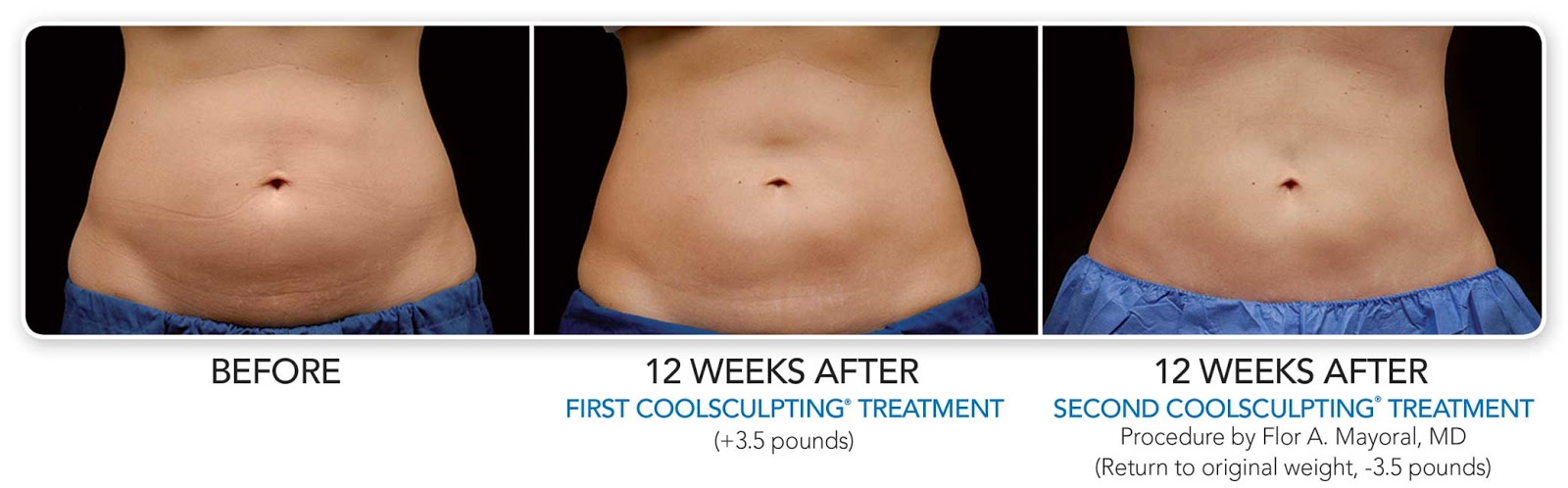 Coolsculpting Lose Weight The Cool Way Without Surgery Redalicerao