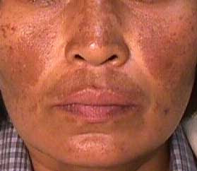 How to Remove Dark Spots on Face Naturally Home Remedies to Get Rid