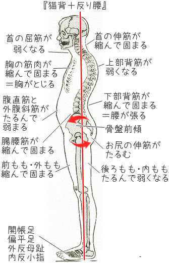 反り腰による腰痛