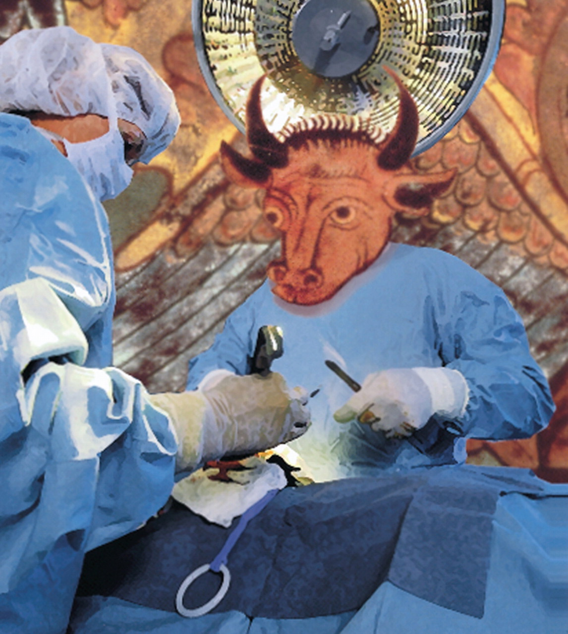 orthopedic surgery Orthopedic surgery as view at 35x with nancam hd by designs for vision, inc.