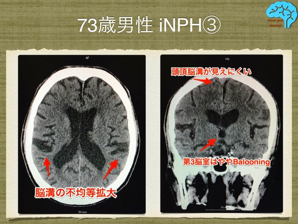 特発性正常圧水頭症における脳溝の不均等拡大