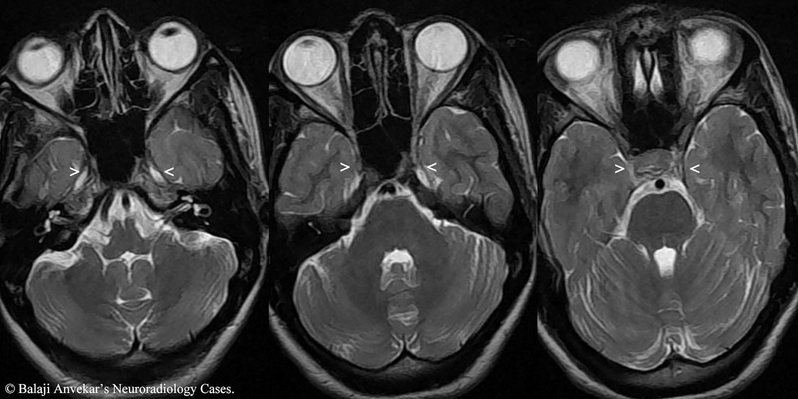 radiology essay topics