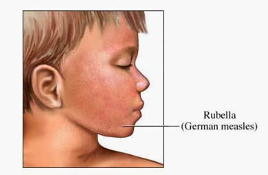 Rubella (German measles) Causes, Symptoms, Diagnosis, Treatment, Prevention