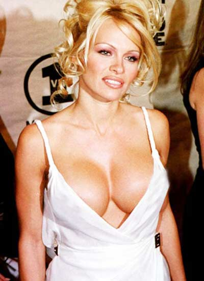 Pictures of breast implants gone wrong