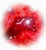 Cara Alami Mengencerkan Darah Kental