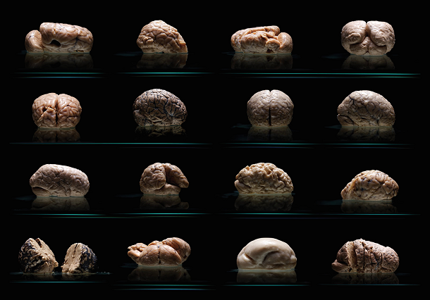 Descoberto bizarro cérebro humano sem rugas