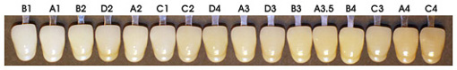 Natural tooth color chart
