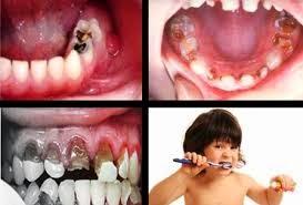Cara sederhana Mengobati Sakit Gigi
