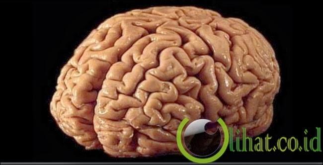 Bedah otak
