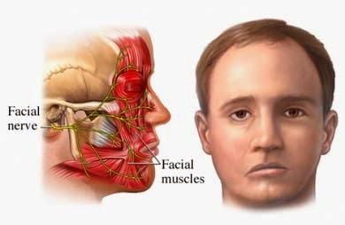 http://www.obatgondok.my.id/2015/11/obat-stroke-ringan-pada-wajah.html