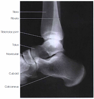 Lateral view ankle