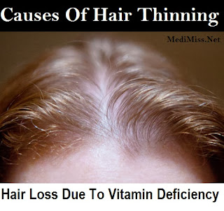 Causes Of Hair Thinning: Hair Loss Due To Vitamin Deficiency