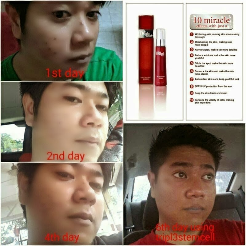 phyto science double stemcell, double stemcell, phytoscience marketing plan, agen double stemcell kluang, double stemcell price, khasiat double stemcell, double stemcell umie aida