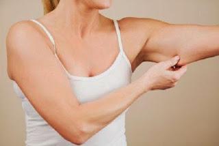5 Tips Ampuh Kencangkan Kulit Setelah Turunkan berat badan