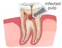 علاج جذور الأسنان