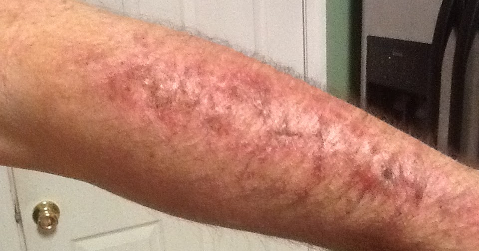 my skin cancer story  okay  you might not want to look
